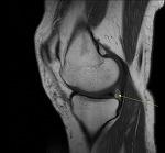정형외과 반월상 연골판 부분 절제술 사례 2(11.09.20).