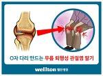 괁절내시경 빠른회복의 무릎연골수술