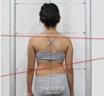 척추측만증 강남세란 치료방법