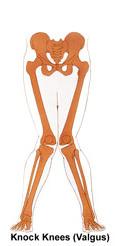 무릎 외반슬