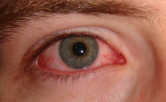 눈병은 영어로 뭘까? pink eye