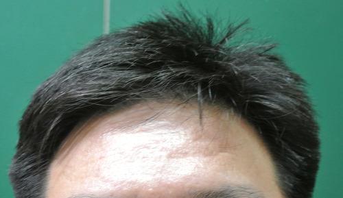 대치동 모발이식, 대치동 피부과, 미국 모발이식 전문의 자격증, 탈모, 탈모샴푸, 탈모예방, 탈모치료, 프로페시아, 피부과레이저, 피부과의원, 피부관리, 피부관리 병원