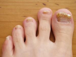 tea-tree-toenail
